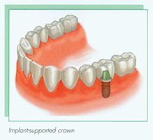 implant01