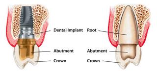 implant01_new
