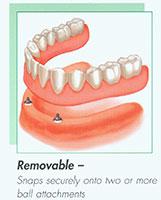 implant03