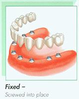 implant06