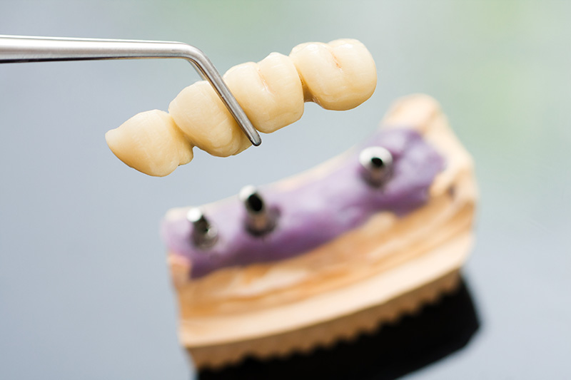 Facts-About-Dental-Implants