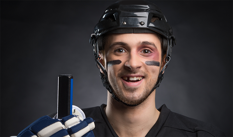 Tooth Loss Due to Sports Injuries