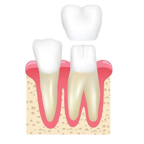 Crown Services at Weisbard Dental