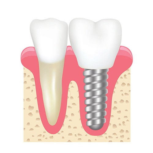 Implant Services at Weisbard Dental