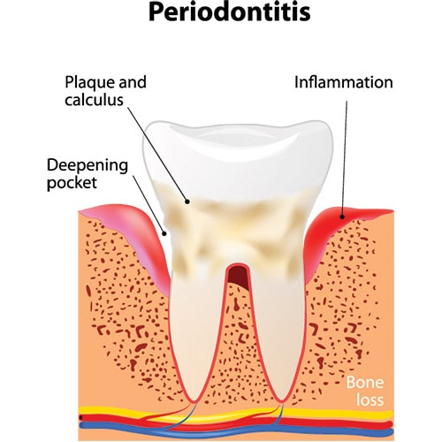 Periodontitis Services at Weisbard Dental