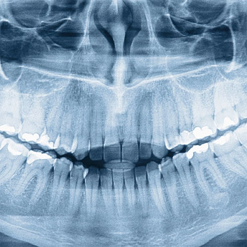 Full Mouth Rehabilitation Services at Weisbard Dental