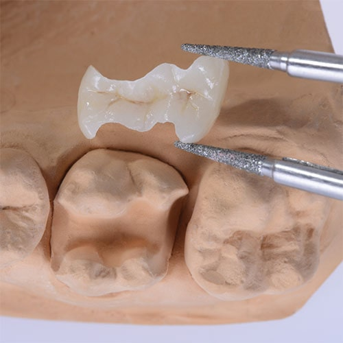 Tooth-Colored Fillings at Weisbard Dental