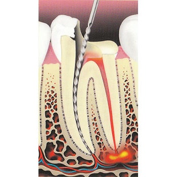 Root Canal Therapy at Weisbard Dental